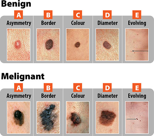 Different types of moles on skin